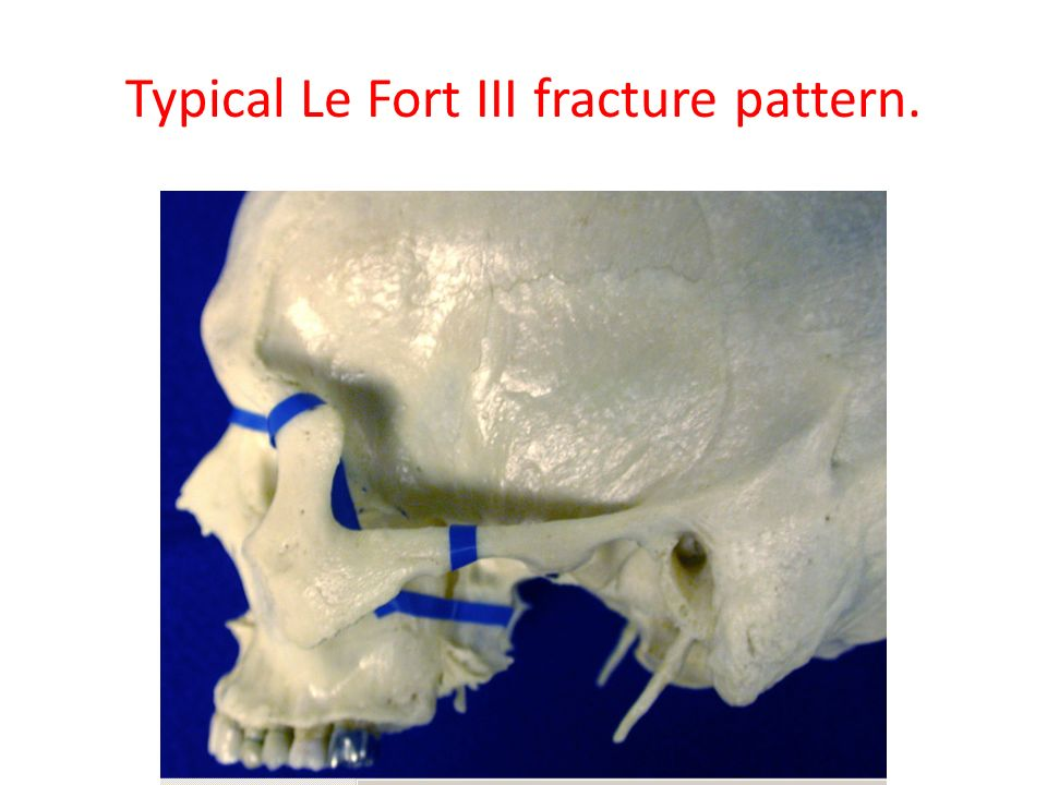 Typical Le Fort III fracture pattern.