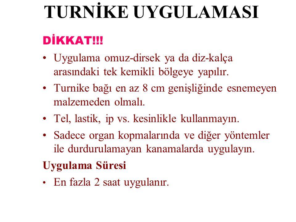 TURNİKE UYGULAMASI DİKKAT!!!