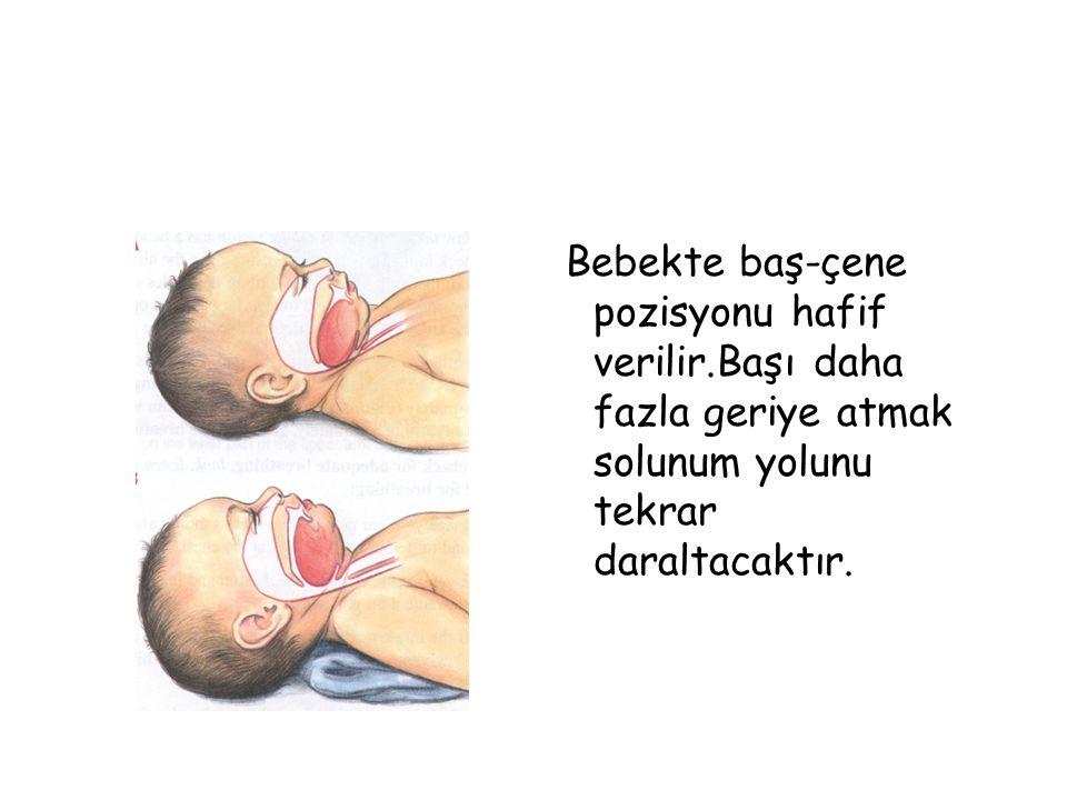 Bebekte baş-çene pozisyonu hafif verilir