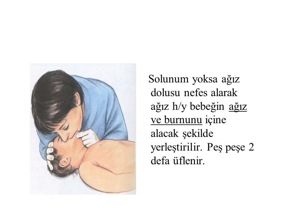 Solunum yoksa ağız dolusu nefes alarak ağız h/y bebeğin ağız ve burnunu içine alacak şekilde yerleştirilir.
