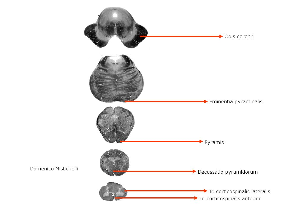 Crus cerebri Eminentia pyramidalis. Pyramis. Domenico Mistichelli. Decussatio pyramidorum. Tr. corticospinalis lateralis.