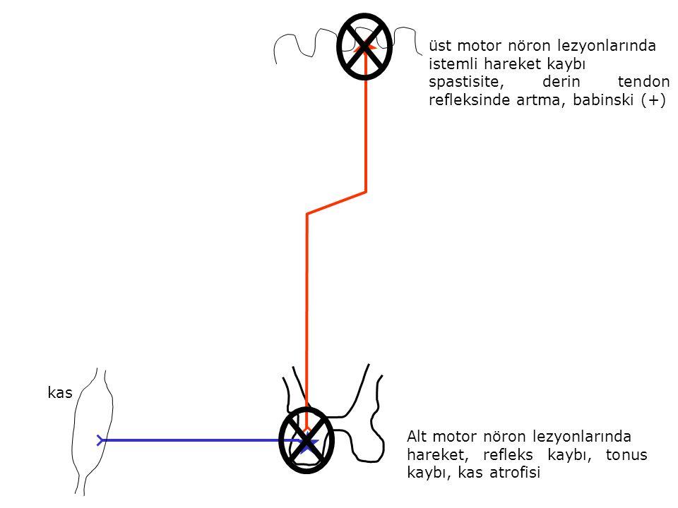 üst motor nöron lezyonlarında