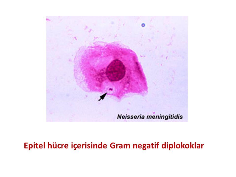 Epitel hücre içerisinde Gram negatif diplokoklar