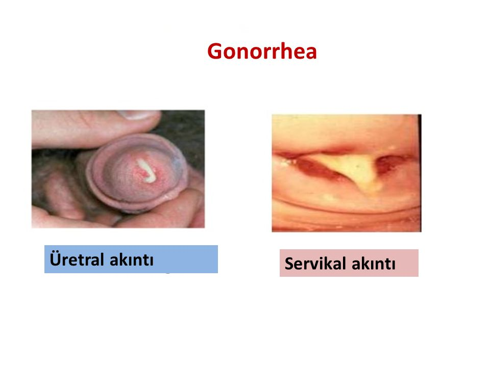 Gonorrhea Üretral akıntı Servikal akıntı