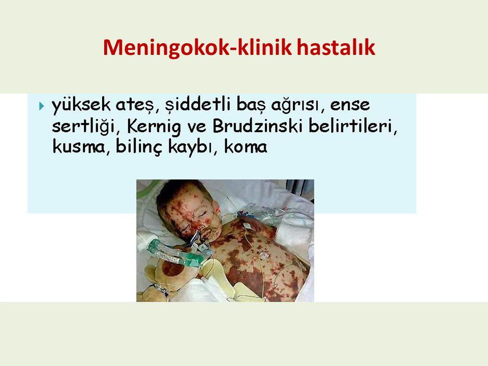 Neisseria meningitidis menenjitin ikinci en yaygın etkeni