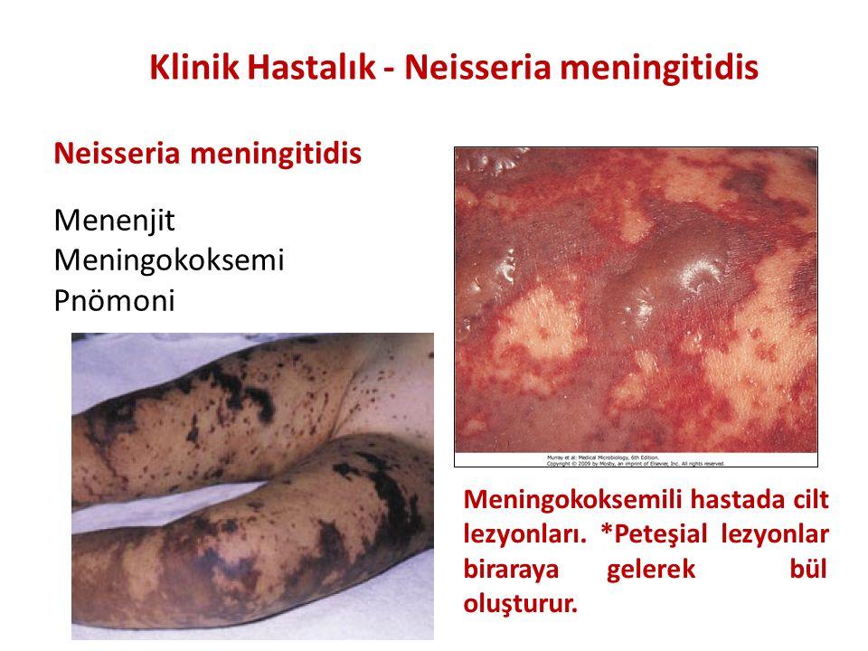 Klinik Hastalık - Neisseria meningitidis