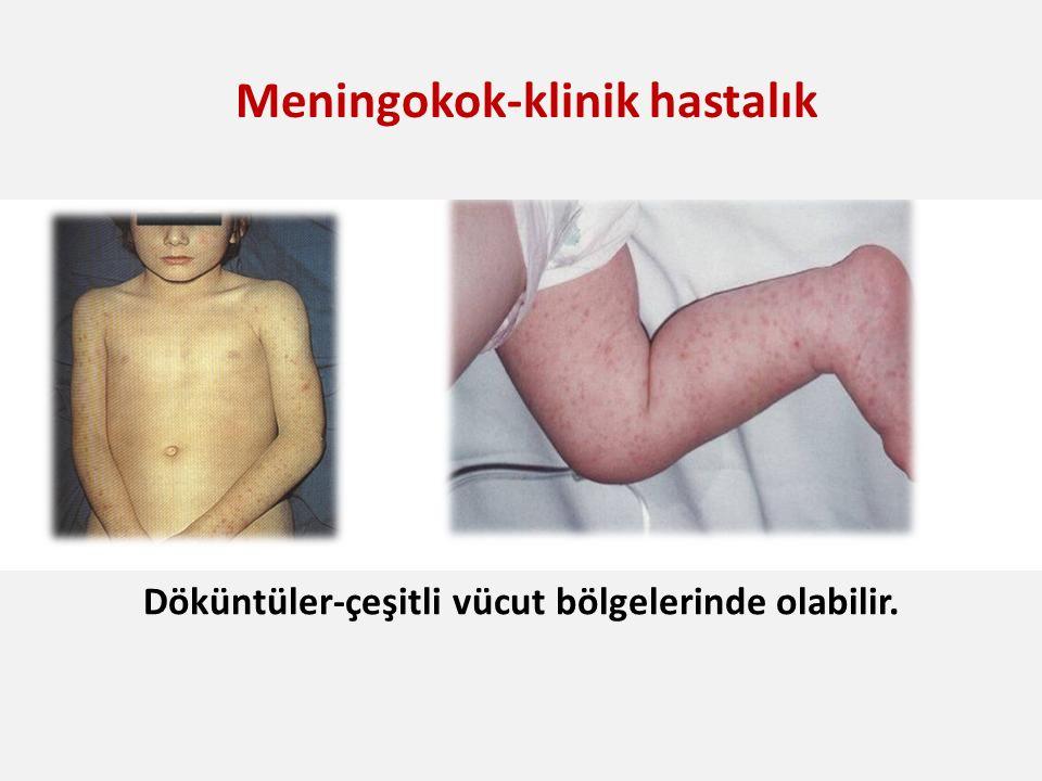 N. meningitidis Meningokok-klinik hastalık