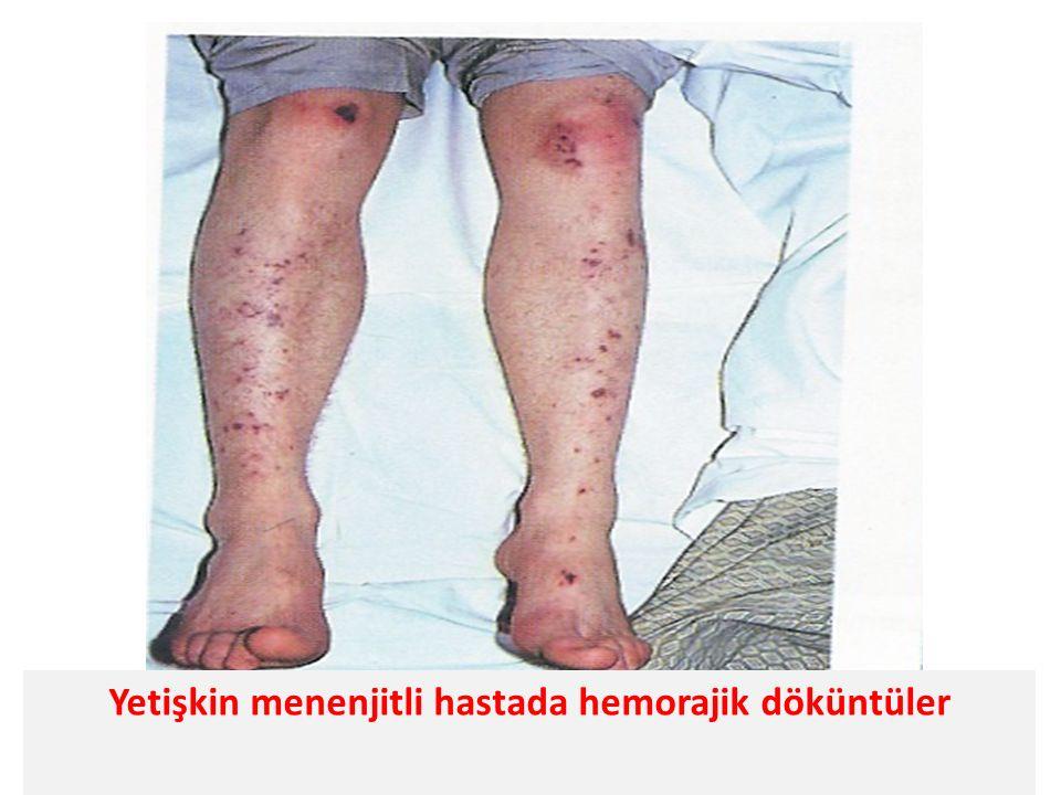 Yetişkin menenjitli hastada hemorajik döküntüler