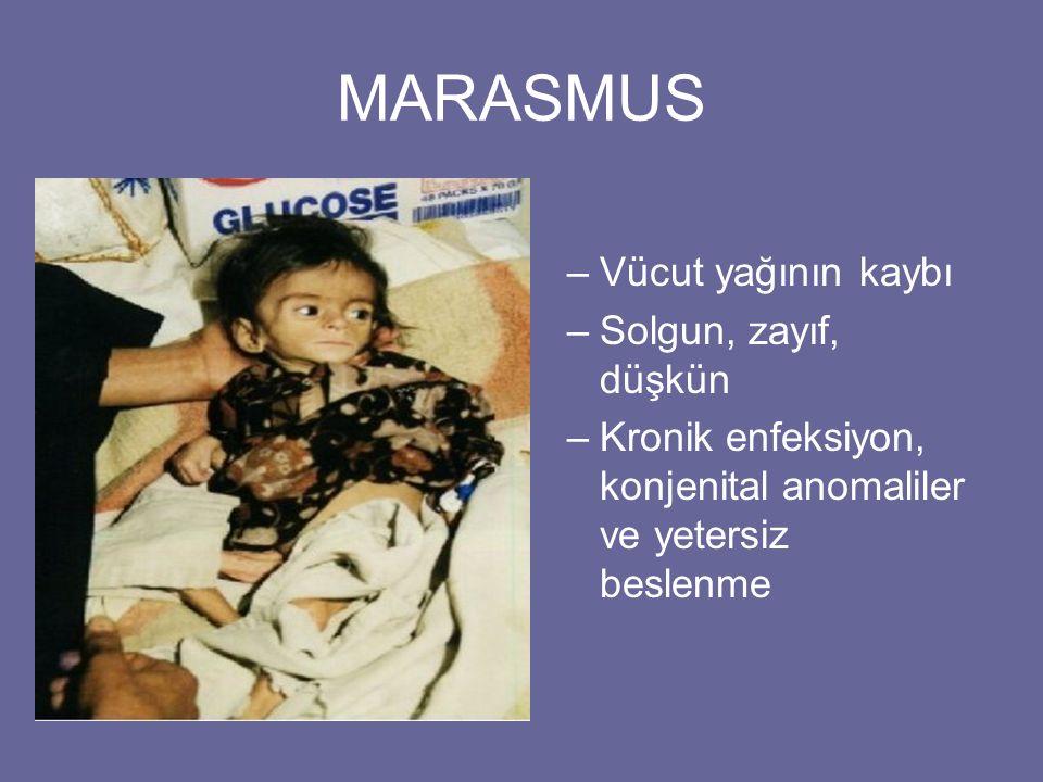 MARASMUS Vücut yağının kaybı Solgun, zayıf, düşkün