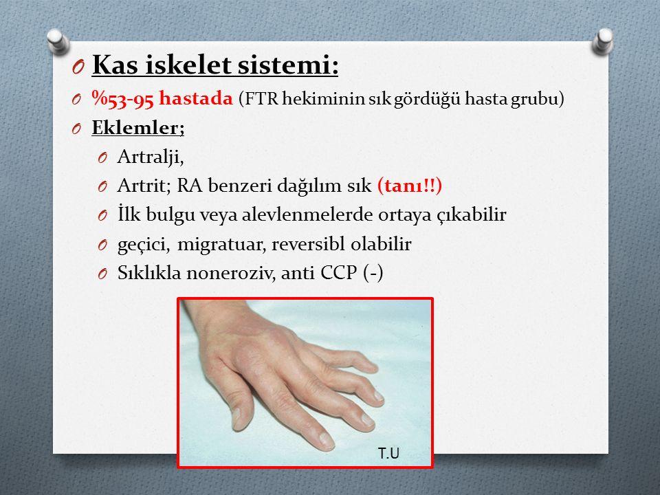 Kas iskelet sistemi: %53-95 hastada (FTR hekiminin sık gördüğü hasta grubu) Eklemler; Artralji, Artrit; RA benzeri dağılım sık (tanı!!)