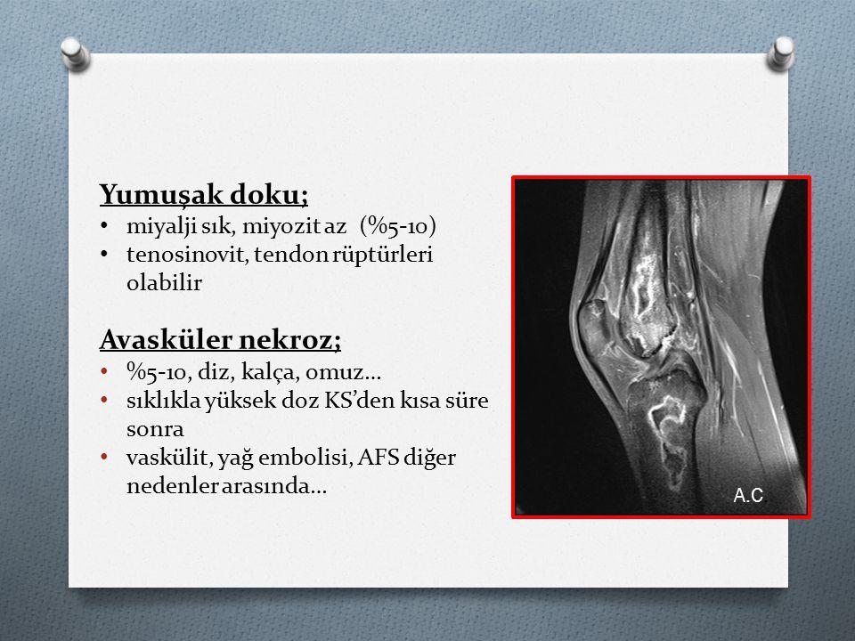 Yumuşak doku; Avasküler nekroz; miyalji sık, miyozit az (%5-10)
