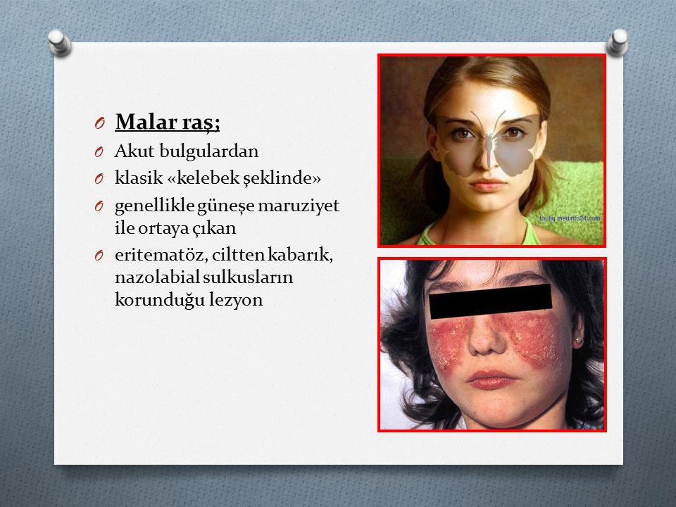 Malar raş; Akut bulgulardan klasik «kelebek şeklinde»