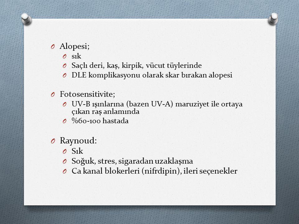 Raynoud: Alopesi; Fotosensitivite; Sık