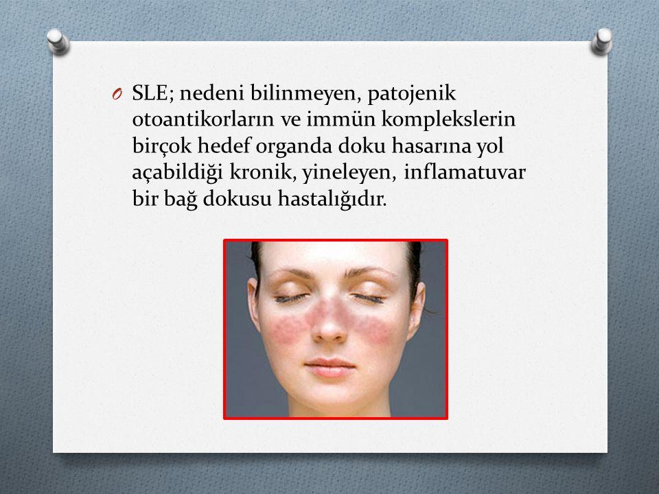 SLE; nedeni bilinmeyen, patojenik otoantikorların ve immün komplekslerin birçok hedef organda doku hasarına yol açabildiği kronik, yineleyen, inflamatuvar bir bağ dokusu hastalığıdır.