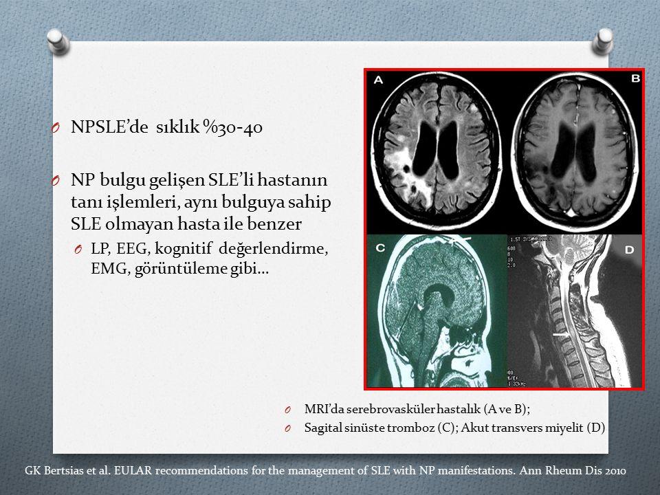 NPSLE'de sıklık %30-40 NP bulgu gelişen SLE'li hastanın tanı işlemleri, aynı bulguya sahip SLE olmayan hasta ile benzer.