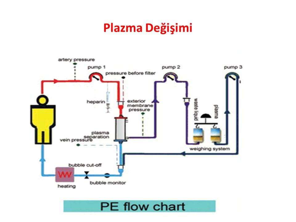 Plazma Değişimi