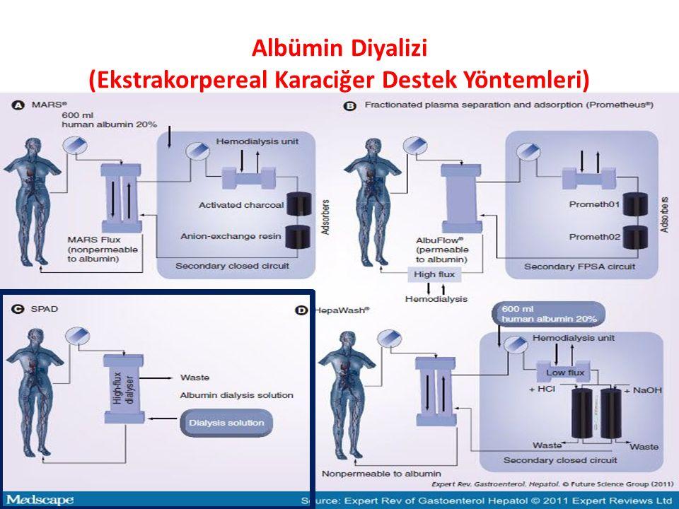 Albümin Diyalizi (Ekstrakorpereal Karaciğer Destek Yöntemleri)