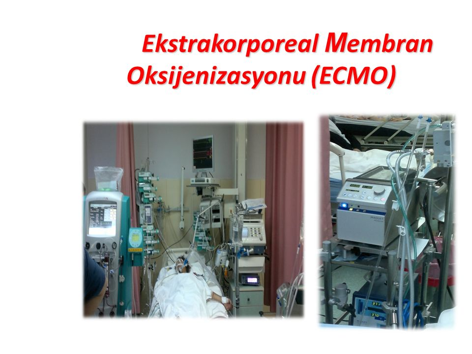 Ekstrakorporeal Membran Oksijenizasyonu (ECMO)