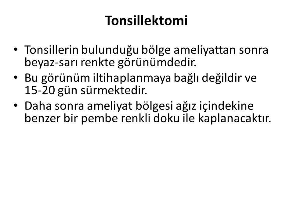 Tonsillektomi Tonsillerin bulunduğu bölge ameliyattan sonra beyaz-sarı renkte görünümdedir.