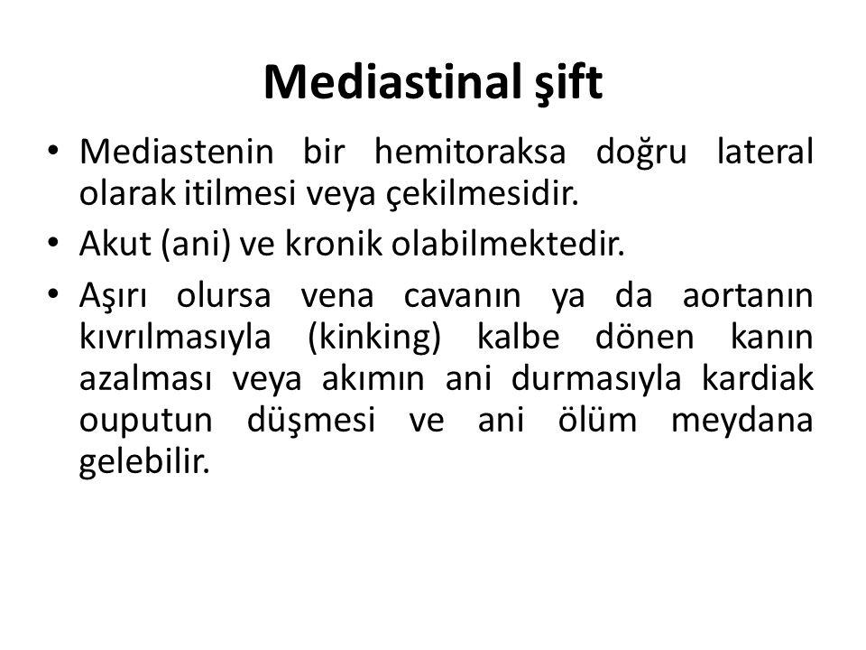 Mediastinal şift Mediastenin bir hemitoraksa doğru lateral olarak itilmesi veya çekilmesidir. Akut (ani) ve kronik olabilmektedir.