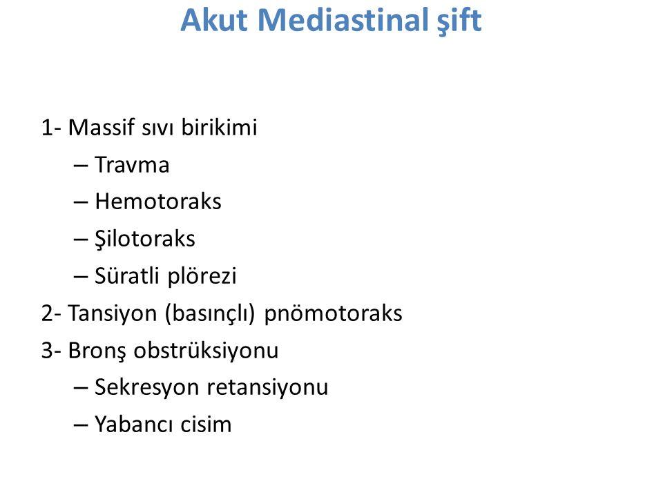 Akut Mediastinal şift 1- Massif sıvı birikimi Travma Hemotoraks
