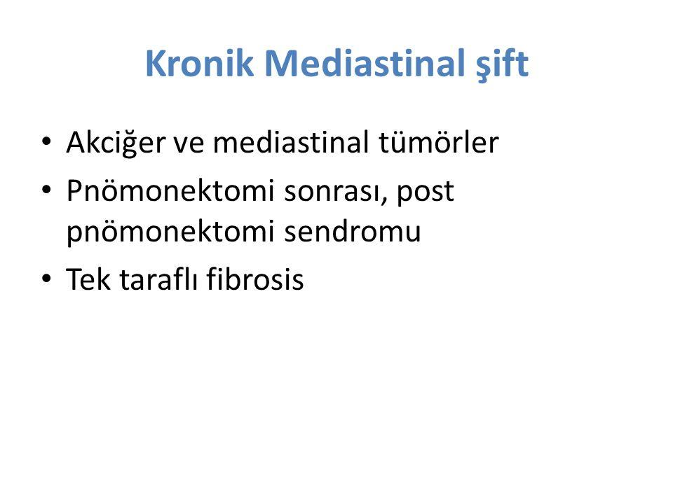 Kronik Mediastinal şift