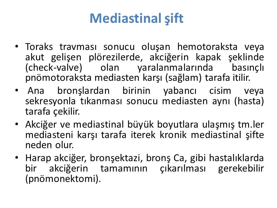 Mediastinal şift