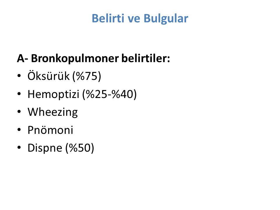 Belirti ve Bulgular A- Bronkopulmoner belirtiler: Öksürük (%75)