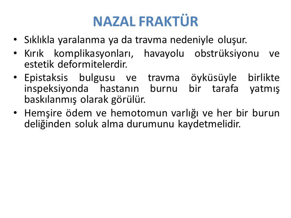NAZAL FRAKTÜR Sıklıkla yaralanma ya da travma nedeniyle oluşur.