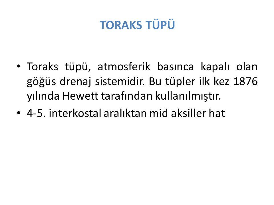 TORAKS TÜPÜ Toraks tüpü, atmosferik basınca kapalı olan göğüs drenaj sistemidir. Bu tüpler ilk kez 1876 yılında Hewett tarafından kullanılmıştır.