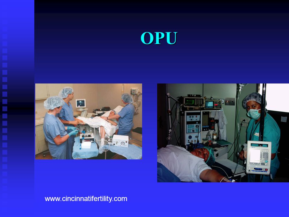 OPU Add photograph www.cincinnatifertility.com