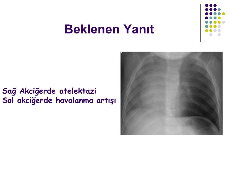 Beklenen Yanıt Sağ Akciğerde atelektazi Sol akciğerde havalanma artışı