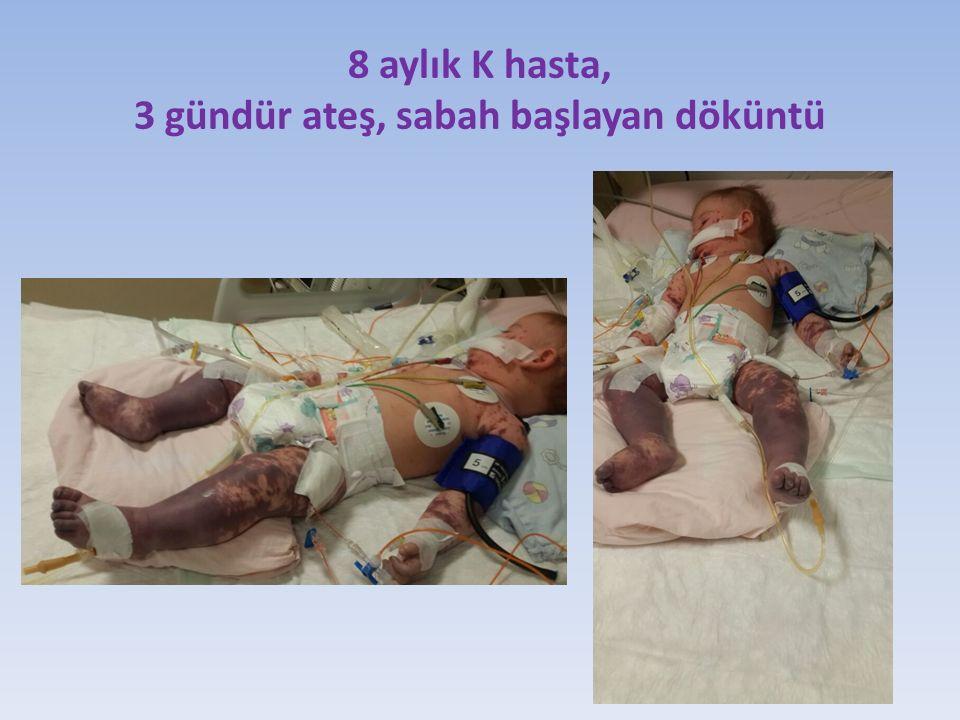 8 aylık K hasta, 3 gündür ateş, sabah başlayan döküntü