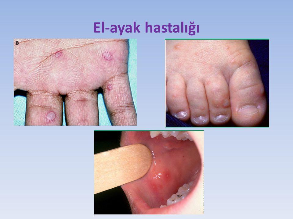 El-ayak hastalığı