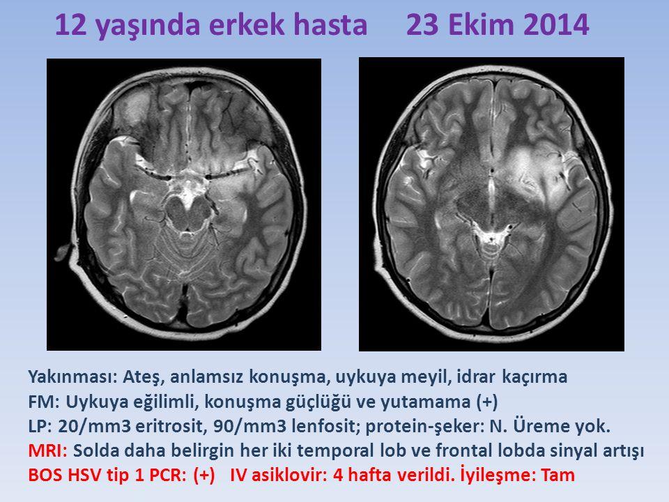 12 yaşında erkek hasta 23 Ekim 2014