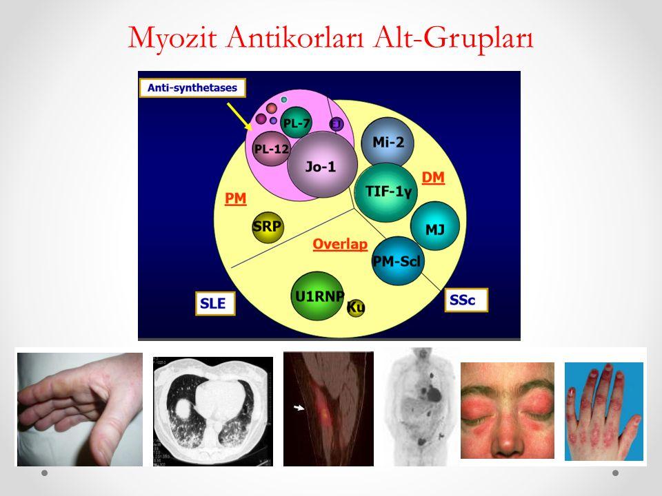 Myozit Antikorları Alt-Grupları