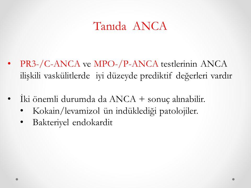 Tanıda ANCA PR3-/C-ANCA ve MPO-/P-ANCA testlerinin ANCA ilişkili vaskülitlerde iyi düzeyde prediktif değerleri vardır.