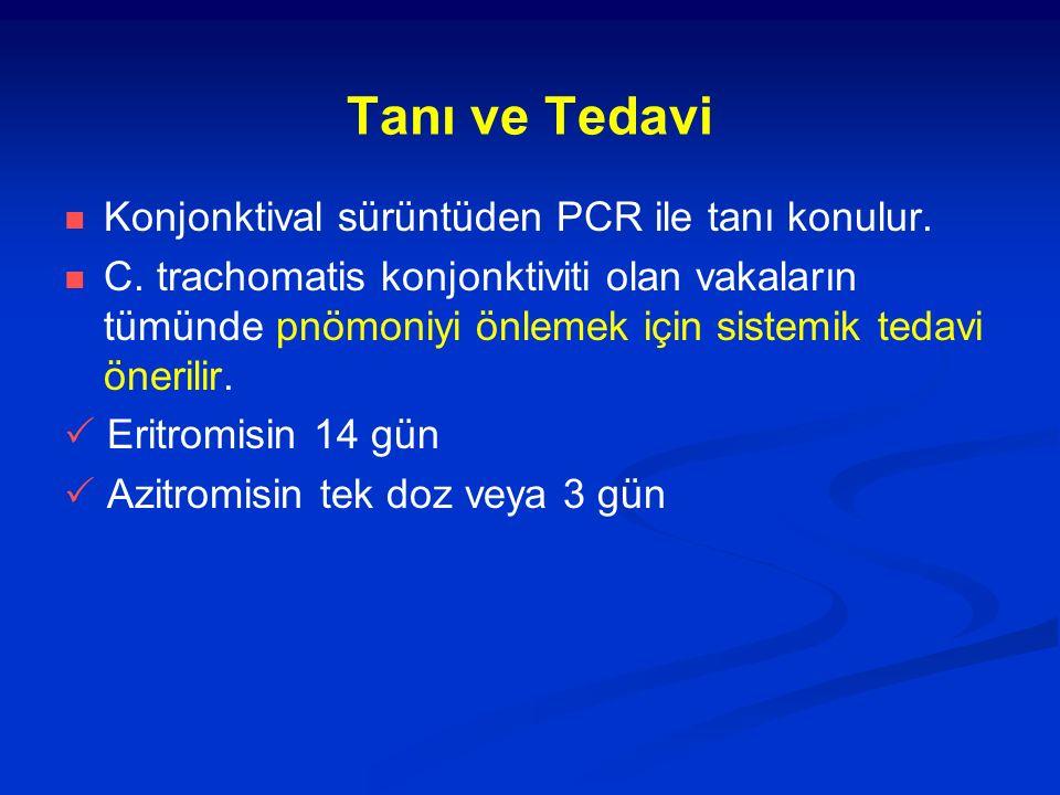 Tanı ve Tedavi Konjonktival sürüntüden PCR ile tanı konulur.