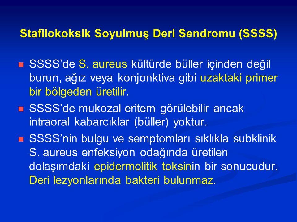 Stafilokoksik Soyulmuş Deri Sendromu (SSSS)