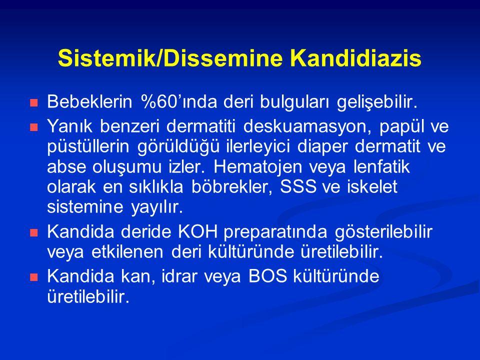 Sistemik/Dissemine Kandidiazis