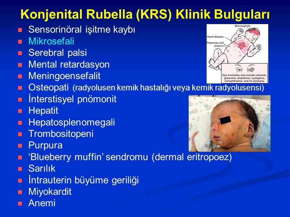 Konjenital Rubella (KRS) Klinik Bulguları