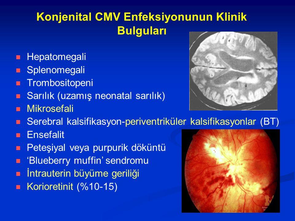 Konjenital CMV Enfeksiyonunun Klinik Bulguları