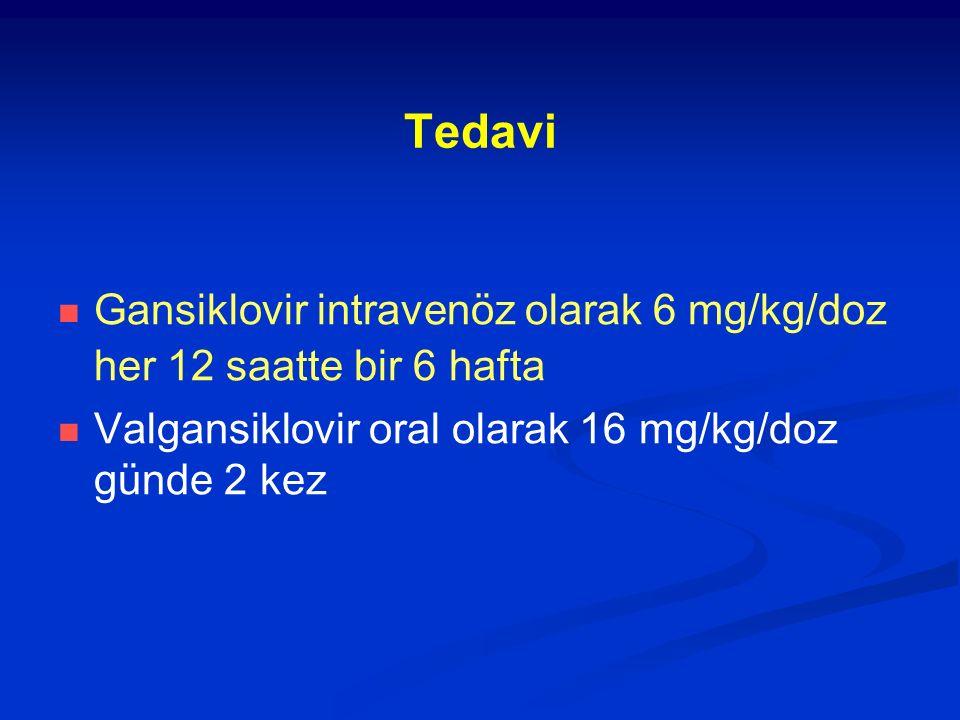 Tedavi Gansiklovir intravenöz olarak 6 mg/kg/doz her 12 saatte bir 6 hafta.