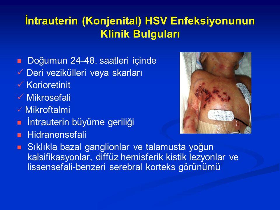 İntrauterin (Konjenital) HSV Enfeksiyonunun Klinik Bulguları