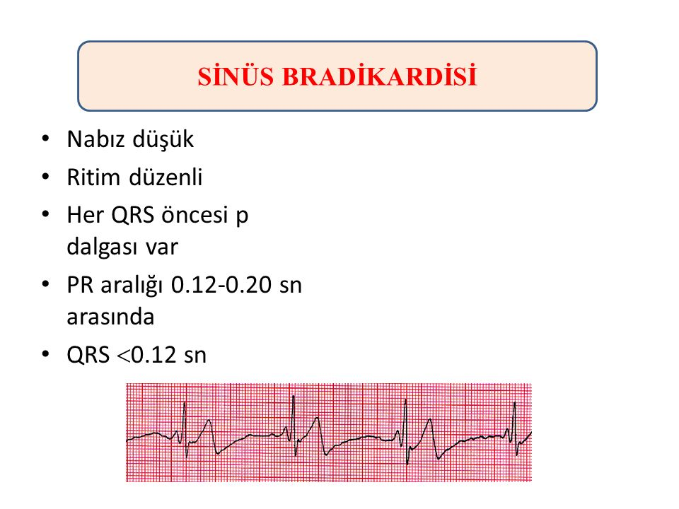 SİNÜS BRADİKARDİSİ Nabız düşük. Ritim düzenli. Her QRS öncesi p dalgası var. PR aralığı 0.12-0.20 sn arasında.