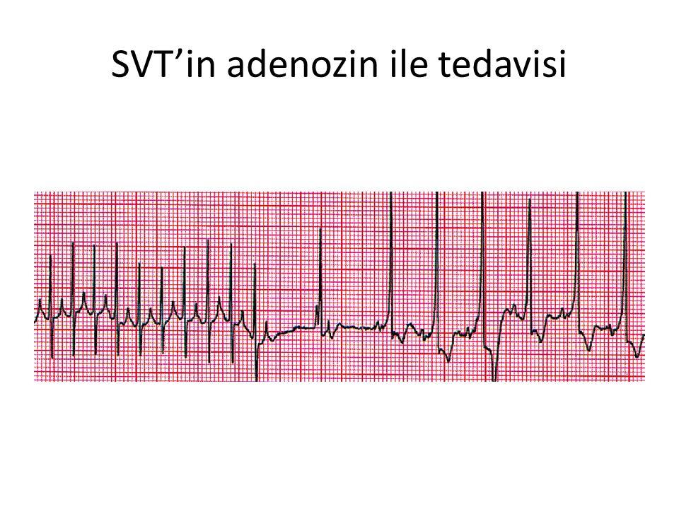 SVT'in adenozin ile tedavisi