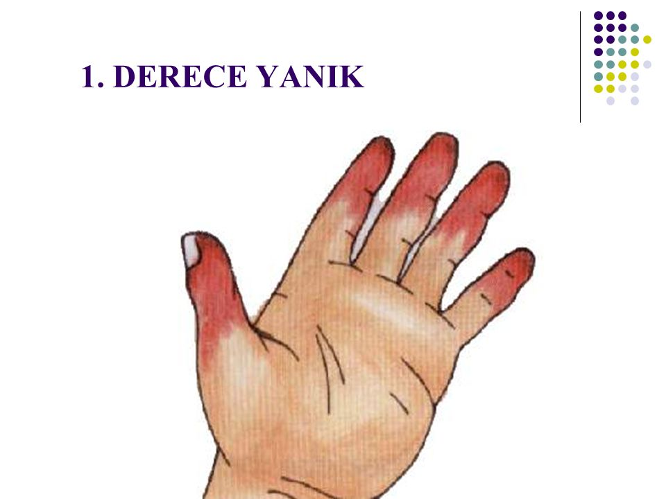 1. DERECE YANIK 16