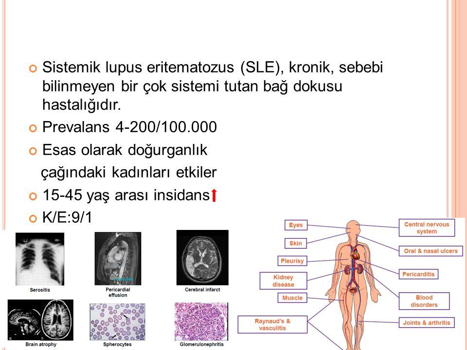 Sistemik lupus eritematozus (SLE), kronik, sebebi bilinmeyen bir çok sistemi tutan bağ dokusu hastalığıdır.