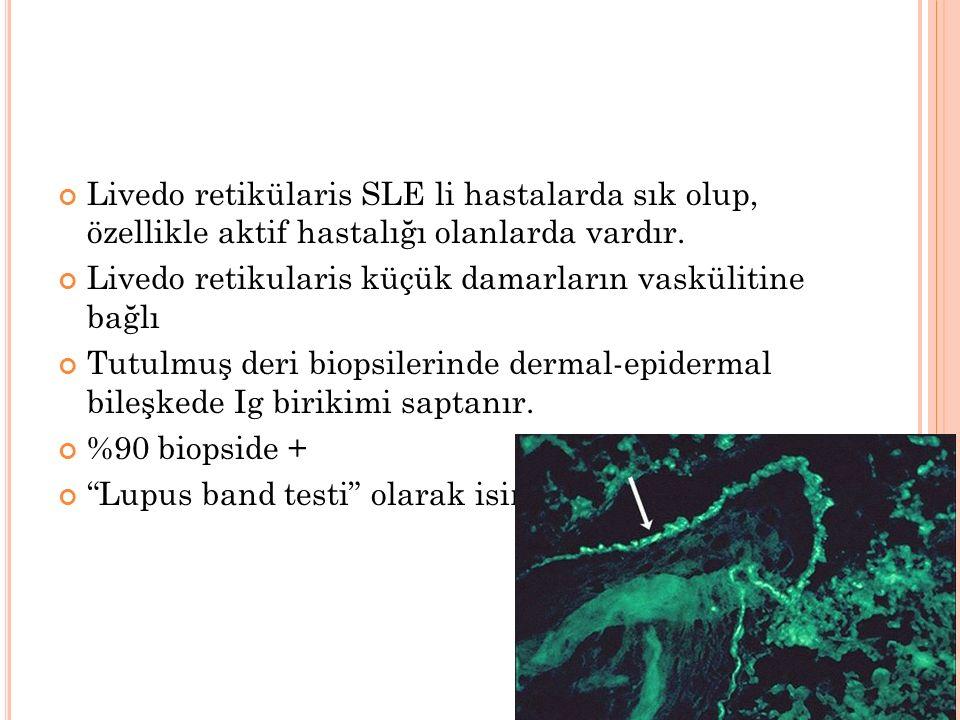 Livedo retikülaris SLE li hastalarda sık olup, özellikle aktif hastalığı olanlarda vardır.