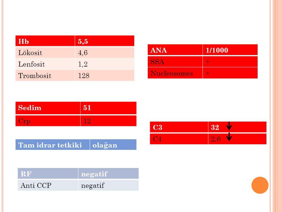 Hb 5,5. Lökosit. 4,6. Lenfosit. 1,2. Trombosit. 128. ANA. 1/1000. SSA. + Nucleosomes. Sedim.